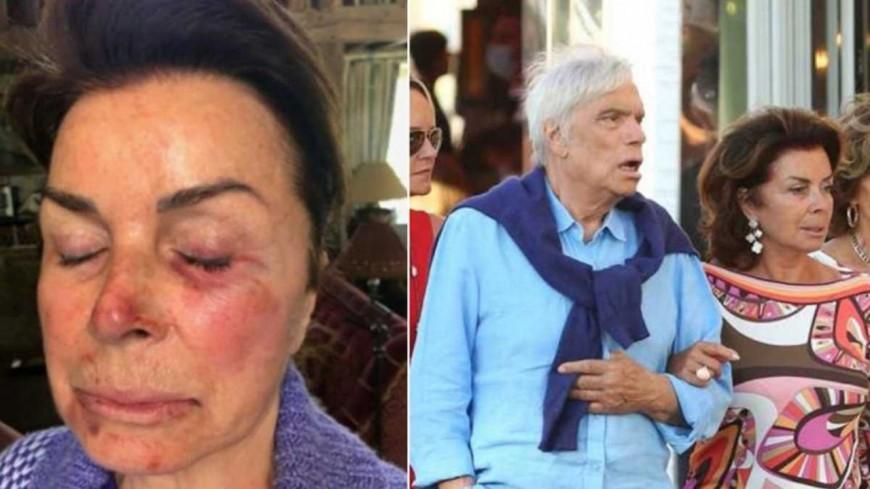Bernard Tapie et sa femme Dominique victimes d'un cambriolage très violent (photos)